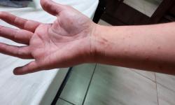 Professora com sarna vai à Upa e é diagnosticada com alergia